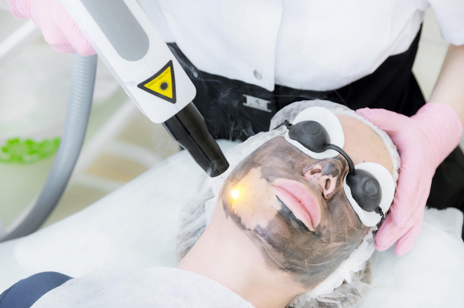 Peeling węglowy jako skuteczny sposób w walce z trądzikiem młodzieńczym i dojrzałym